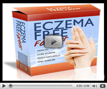 Eczema-Free-Forever-Review-By-Rachel-Anderson