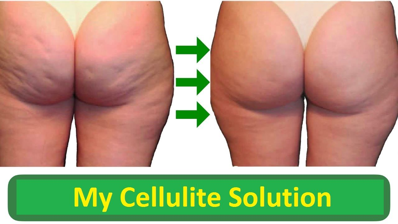 My Cellulite Solution Reviews Is Gavin Walsh Scam